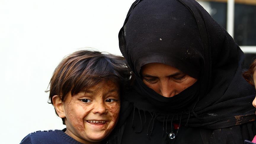 Enfant syrien portant les marques de la guerre sur son visage